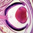 ../../images/ss_retinoblastoma.jpg