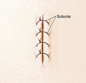 Incision closed with sutures.