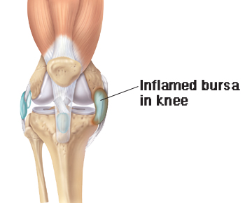 Inflamed bursa in knee