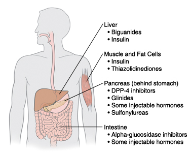 Outline of human figure showing locations where diabetes medicatinos work.