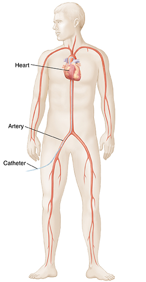 Male figure showing heart and arteries. Catheter goes from artery in thigh to heart.