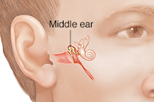 Man's face showing middle ear structures.