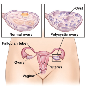 Outline of female pelvis showing vagina, uterus, fallopian tubes, and ovaries. Closeup of cross section of normal ovary. Closeup of cross section of polycystic ovary.