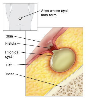 Outline of human figure from the back showing buttocks with small circle above buttocks crease showing where cyst may form. Closeup of section of skin, fat, and bone. Pilonidal cyst is in fat layer, connected by fistula to skin. Skin around fistula is inflamed.