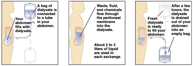 Outline of human figure from the side showing catheter inserted in abdomen. Bag of dialysate is attached to catheter. Dialysate is flowing from bag into abdomen. Waste, fluid, and chemicals flow through peritoneal membrane in abdomen into dialysate. About two to three liters of liquid are used in each exchange. After a few hours, dialysate is drained out of abdomen into empty bag. Fresh dialysate is ready to fill abdomen.