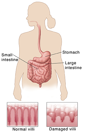 Outline of human figure showing digestive system. Insets show normal villi and short, damaged villi.