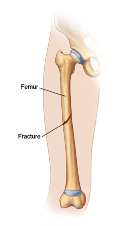 Outline of leg showing fracture in middle of femur.