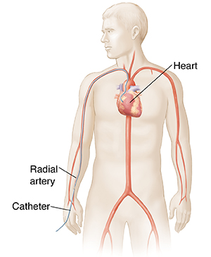 Outline of male figure showing transradial cardiac catheterization.