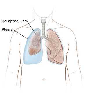 Outline of man showing collapsed lung inside pleura on right side. Normal lung on left.