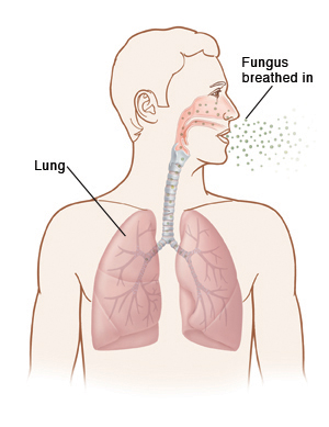 Outline of man's head and chest showing fungus being breathed into nose and lungs.