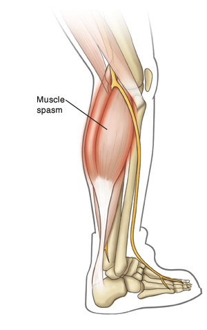 Outline of right lower leg showing calf muscles contracting in a spasm.