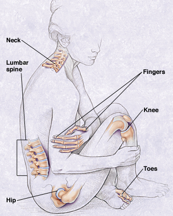 Outline of woman showing joints affected by osteoarthritis: neck, lumbar spine, hips, fingers, knees, and toes.
