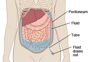 Outline of woman's abdomen showing abdominal organs. Abdominal wall is lined on inside with peritoneum. Fluid is filling abdomen under peritoneum and around organs. Tube is inserted through skin into abdomen to drain fluid out.