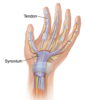 Palm of hand showing tendons, bones, muscles, arteries, nerves.