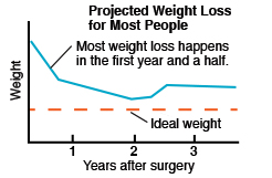 Projected weight loss for most people, showing Weight, Ideal weight, Years after surgery. Most weight loss happens in the first year and a half.