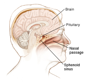 Side view of a female head showing the brain, pituitary gland, sphenoid sinus and nasal passage.