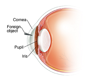 Side view cross section of front of eye showing iris, pupil, and foreign object stuck in cornea.