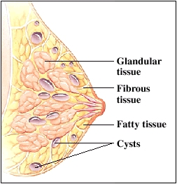 Side view of cross section of breast showing glandular tissue, fibrous tissue, and fatty tissue.  Multiple cysts throughout breast tissue.