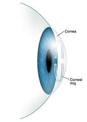 Side view of eye showing corneal ring in cornea.
