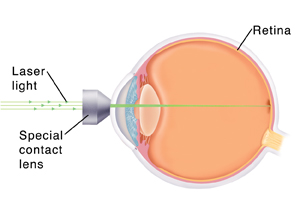 Side view of eye showing lens on front of eye. Laser light is focusing on inside back wall of eye.