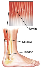 Side view of lower leg showing leg and heel bones, muscle, and tendon. Closeup shows strain (damage) in muscle near tendon.