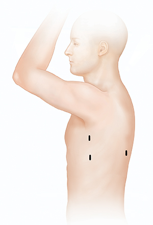 Side view of male torso showing possible incision sites for thoracoscopy.