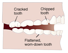Side view of teeth and jaws showing cracked tooth, chipped tooth, and flattened, worn-down tooth.