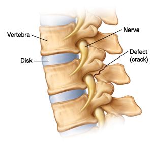 Side view of vertebrae with spondylolysis showing defect (crack) at back of one vertebra, the nerve and disk.