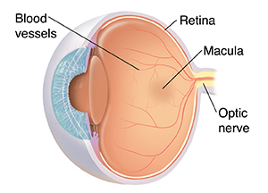 Three quarter view of cross-sectioned eye showing normal anatomy.