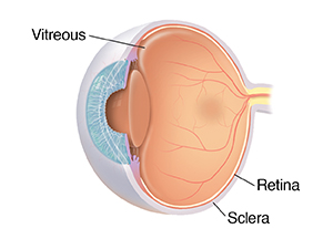 Three-quarter view of cross-sectioned eye showing vitreous.