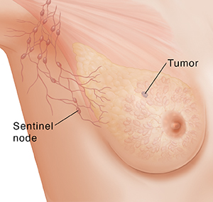 Three-quarter view of female underarm area showing tumor and sentinel lymph node.