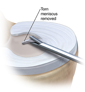 Top three-quarter view of tibia showing medial menisci. Medial meniscus has instrument removing tissue.