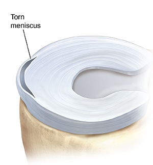 Top view of tibia showing showing peripheral tear in one meniscus.