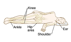 When lying on the side, pressure ulcers can occur on the ankle, knee, hip, shoulder or ear.