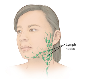 Three-quarter view of woman's head showing lymph nodes in neck.