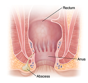 Cross section of anus showing abscess.