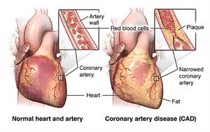 Normal heart and heart with CAD