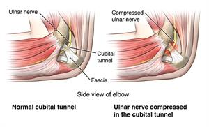Cubital Tunnel Syndrome | Cedars-Sinai
