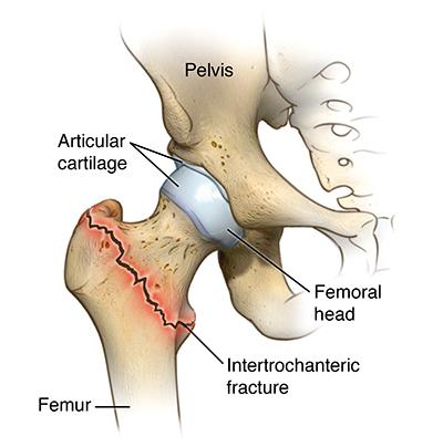 broken neck diagram hip fracture | cedars-sinai
