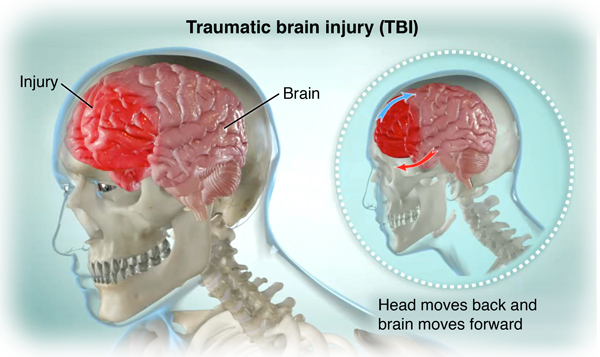 head Adult injury closed