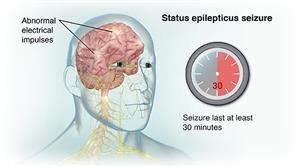 Status Epilepticus Seizure