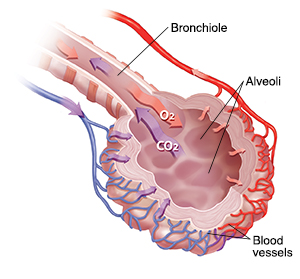 Interstitial lung disease staywell api web examples bronchiole and alveolar sac with blood supply showing oxygencarbon dioxide exchange ccuart Choice Image