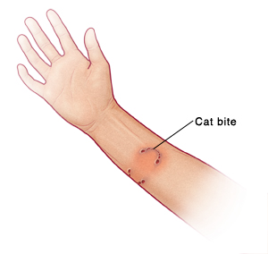 First Aid For Cat Scratches And Bites