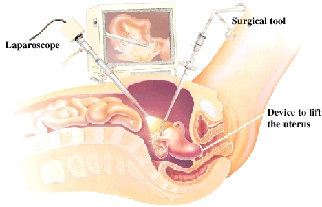 How Reproductive Laparoscopy Is Done Staywell Api Web Examples