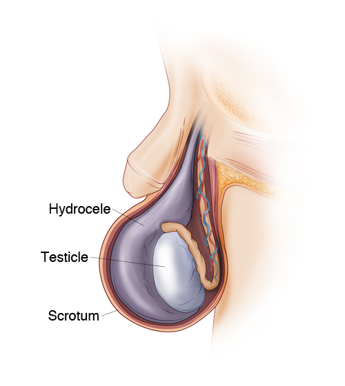 Hydrocele. Click to Enlarge.