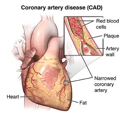 echocardiogram results how long