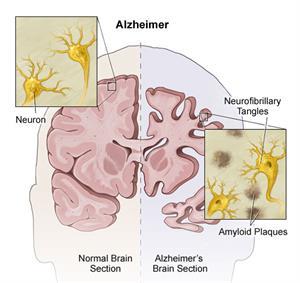 Alzheimer anatomy