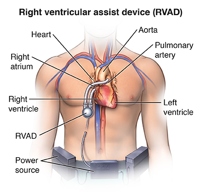 Right Ventricular Assist Device Implantation | Saint Luke's Health
