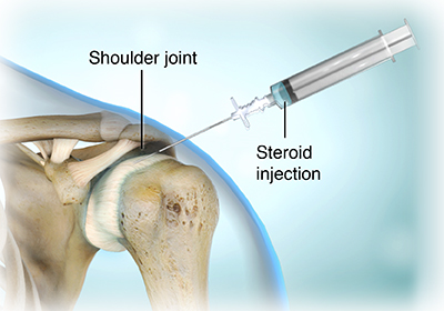 shoulder tendonitis, Human body