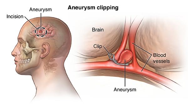 cerebral aneurysm, Human body